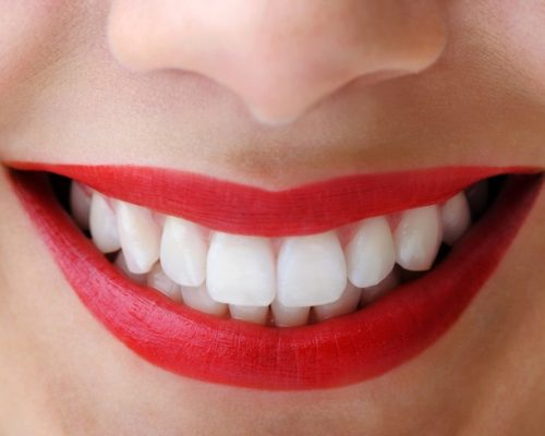 7/16/12 Daily Dose Kotz blog about whiter teeth